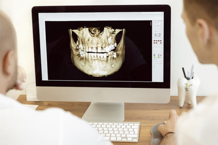 Dental Scan 3D