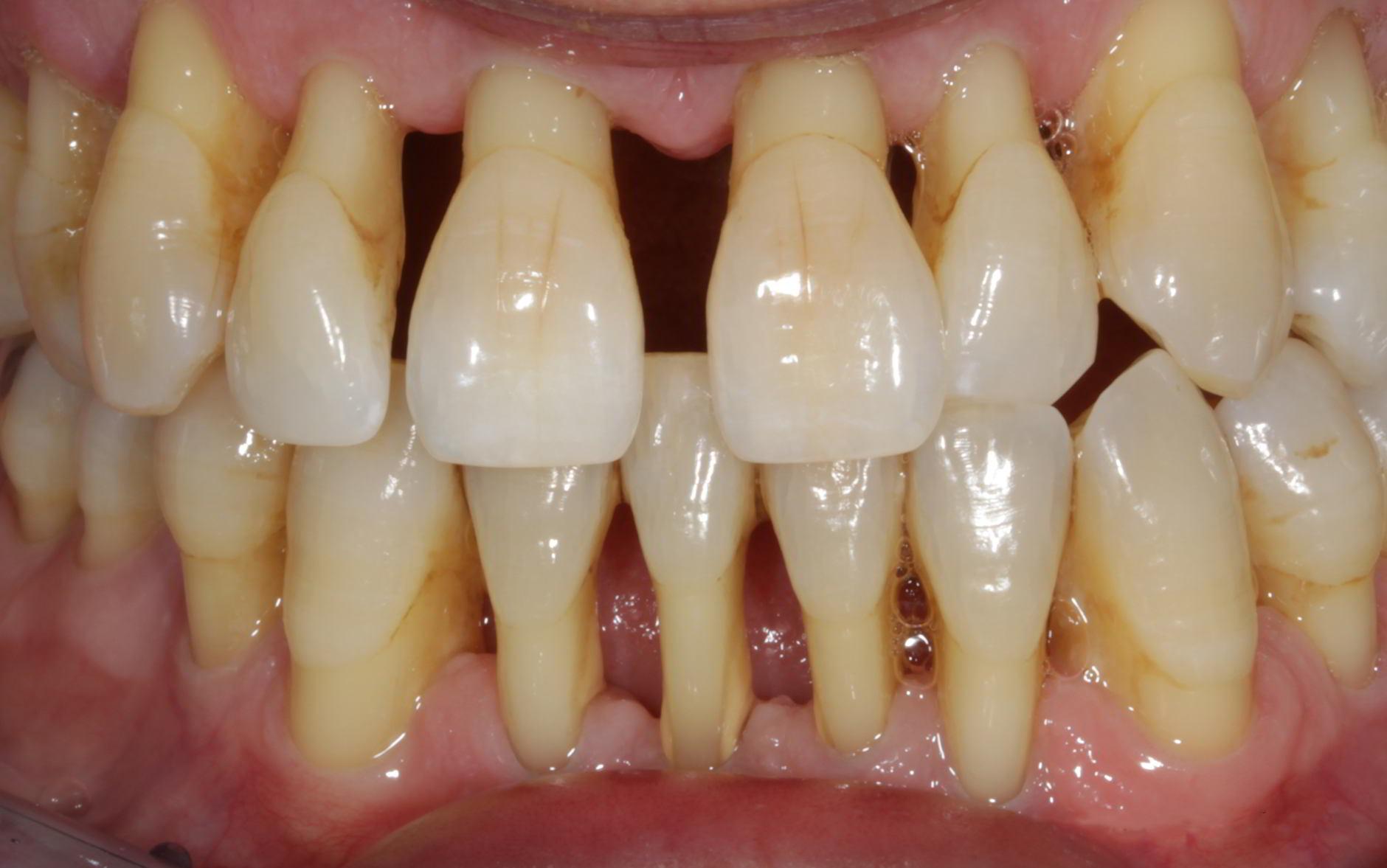 parodontite severa